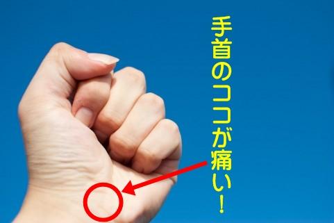 医師の診断で一安心!痛みを伴う手首の腫れの病名と原因